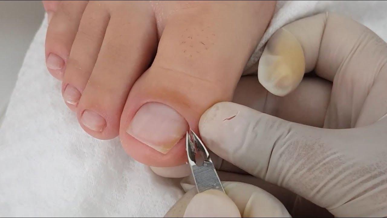 Como Tirar a Cutícula Unha do pé
